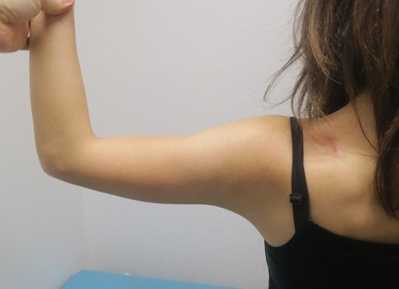 二の腕の脂肪吸引。3週目の経過。結構引き締まってきています。