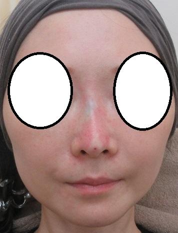 Gメッシュによる鼻筋形成(昨年8月、12月、本年8月にも挿入)。治療経過。