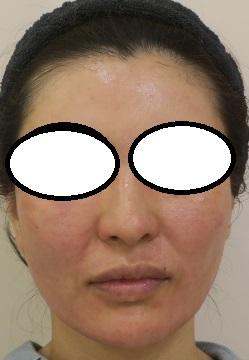 ウルトラセルQプラス半顔+Frenchshot SkinRenew(フレンチショットスキンリニュー)のダブルメソセラピー