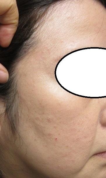 顔と首の大量にあったイボをレーザーできれいにしました。1年目の経過。