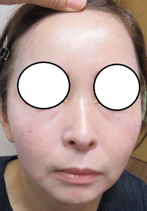 ゼオスキン1か月目の経過。肝斑治療の経過。