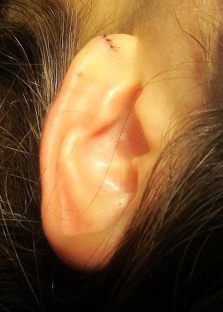 耳垂裂の手術。直後の状態。