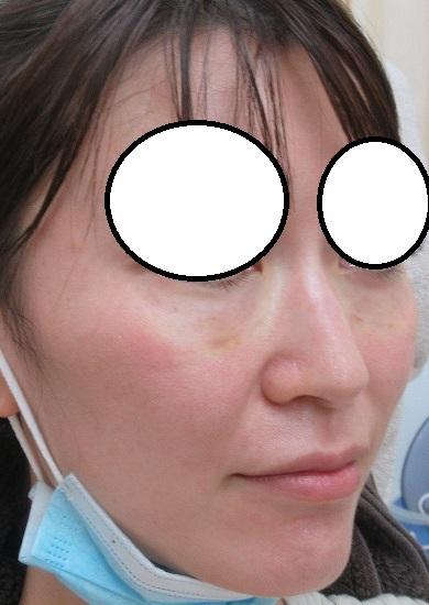 目の下のヒアルロン酸注入(他院にて注入)後のボコツキ。ヒアルロニダーゼ(ハイラックス)、直後の状態。
