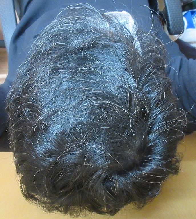 今月の院長の頭皮の状態。