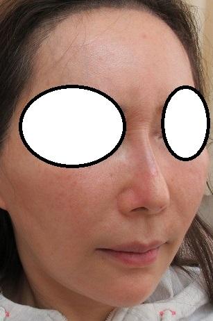 すっかり定番になった鼻筋通す糸、オメガVL、人気です。繰り返すことで自然な鼻筋が形成されます。