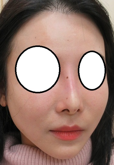 1年間で5回糸による鼻の形成を受けて、その1年後の経過。