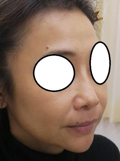 糸による鼻筋形成+ヒアルロン酸による顎形成。1年半の間でかなりいい感じになってきています。
