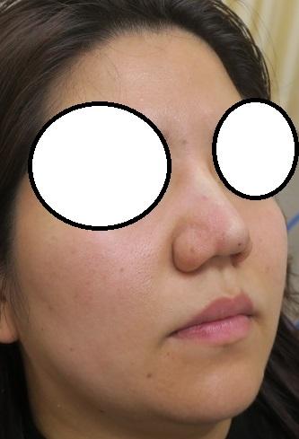 Gメッシュを3本挿入。鼻筋がスッとなり鼻尖も尖がりました。直後の変化。腫れもかなり少ないです。
