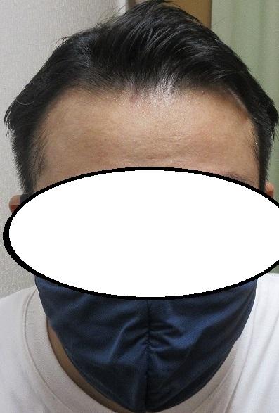 豊洲で薄毛治療。ドットヘアの内服外用。5年2カ月目の経過。