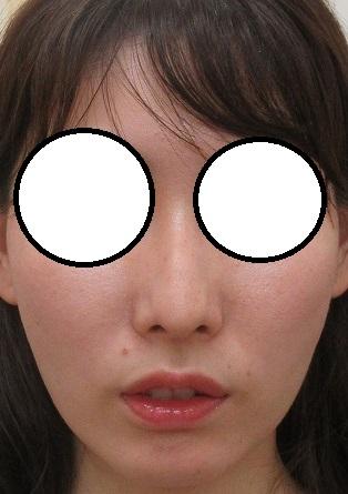 両頬のげっそり感をヒアルロン酸で改善。直後の状態。