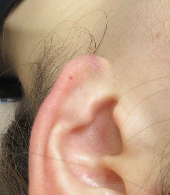 耳垂裂の手術。1週目の経過。