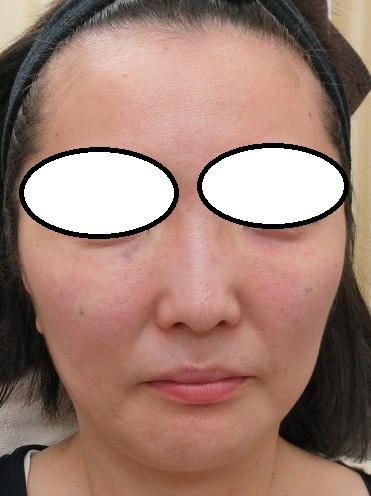 目の下のクマの手術。直後の状態。かなりきれいに仕上がりました。