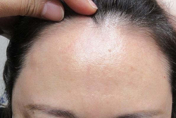 額の細かいしわへの幹細胞上清液注入療法。2カ月目の経過。