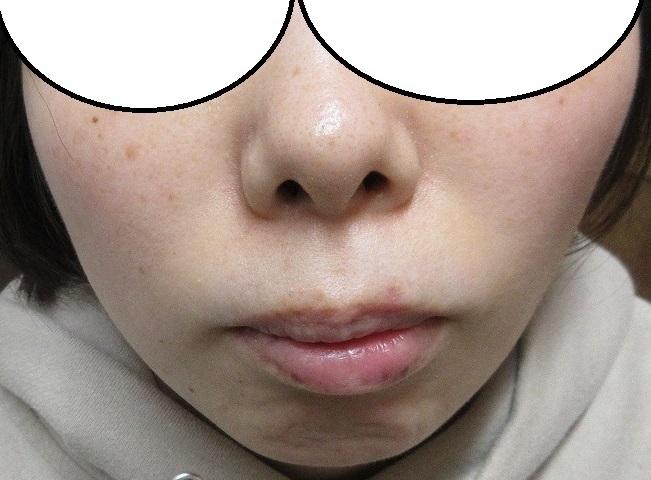 鼻下~口唇にかかるホクロの切除。1カ月目の経過。