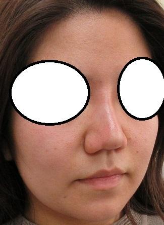 糸による鼻筋形成。オメガVL。直後の状態。いい感じですね。