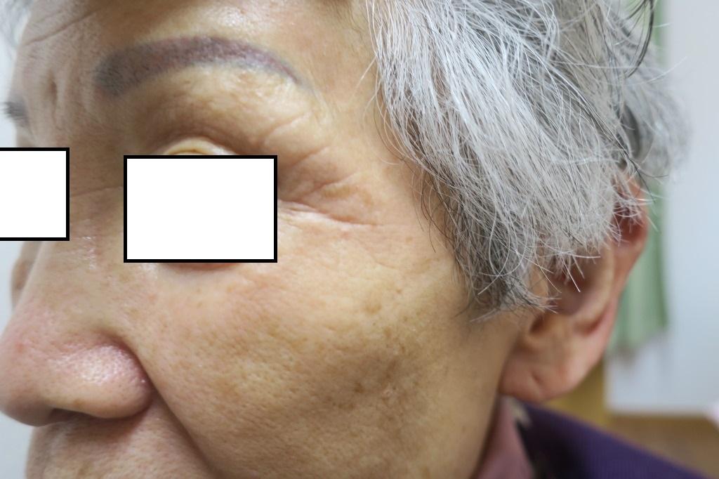 左目尻の大きいシミをレーザー治療しました。1年8か月目の経過。かなりきれいになってきました。