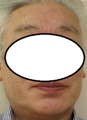 ウルトラセルQプラスで額の深いしわが劇的に改善しました。60代男性。新治療にしました。