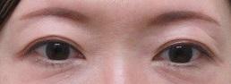 眉下切開法による上眼瞼のたるみ除去術(眉下皮膚切除)、4か月目の経過。