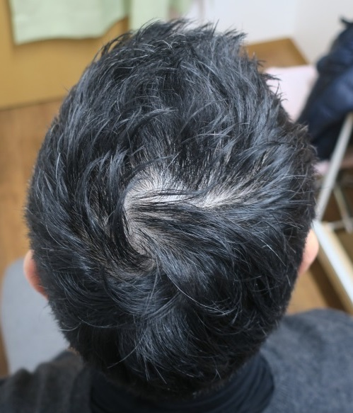 豊洲で薄毛(AGA)治療。内服+外用でここまで改善。1年10か月目の経過。
