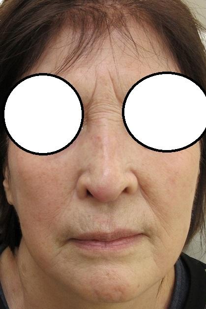 鼻筋の濃いしみのレーザー治療の2週目の経過 まだ赤みや黒ずみが残っています。これからが重要です
