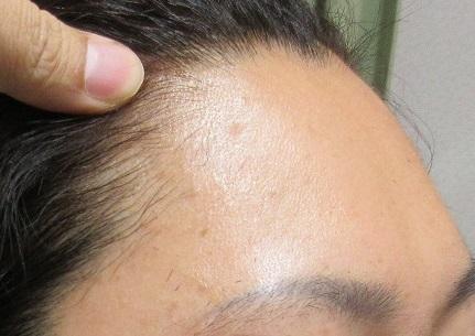額のイボレーザー治療。3カ月目の経過。