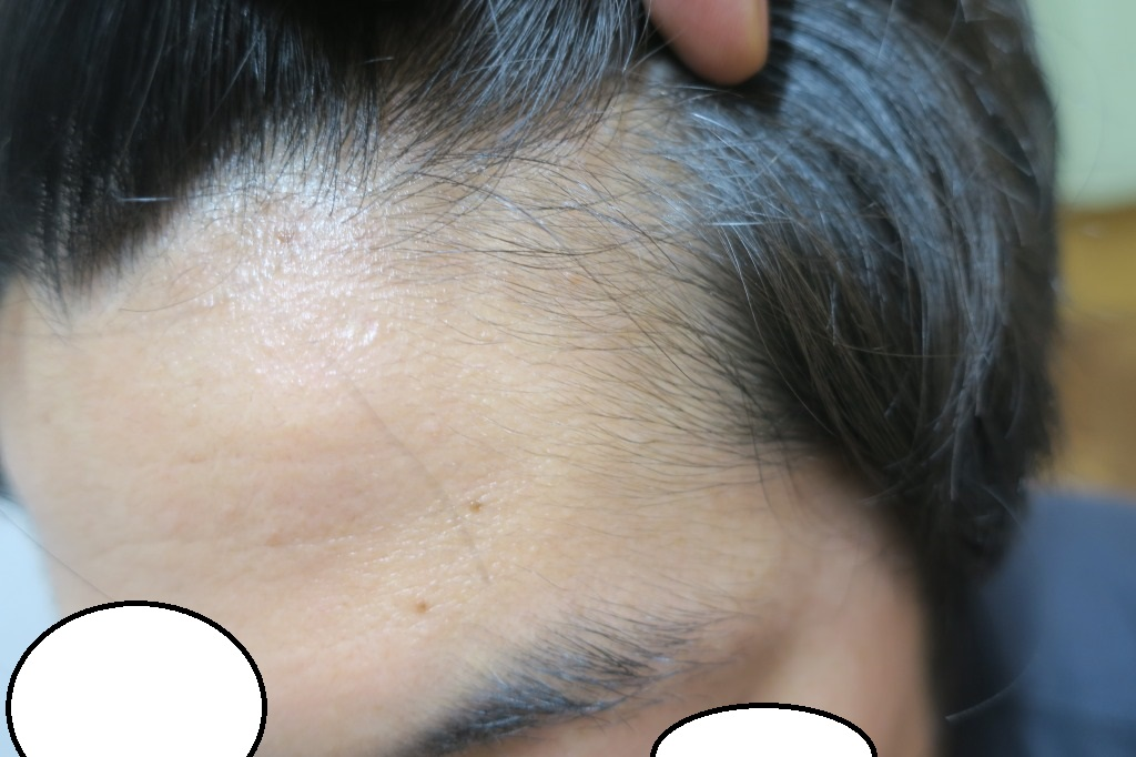 豊洲で薄毛(AGA)治療。ドットヘアの内服外用で一番効果の出にくいM字部分がかなりいい感じです。9か月目。