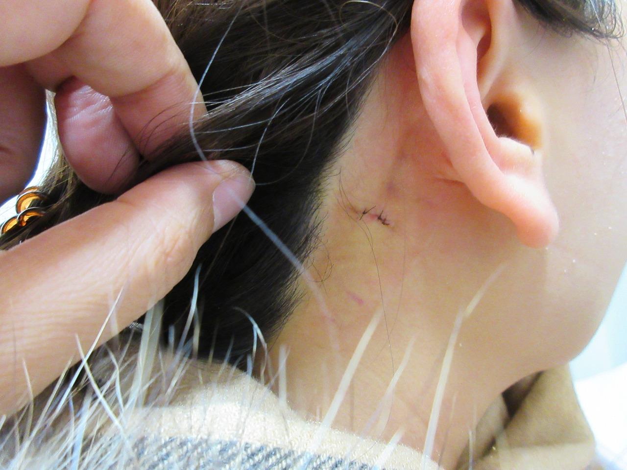 耳 の 後ろ の ホクロ