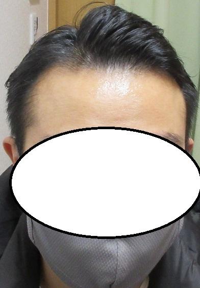 豊洲で薄毛治療。ドットヘア内服と外用の4年5か月目の経過。