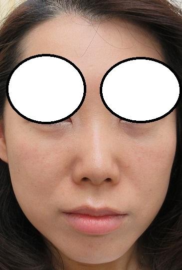 目の下のクマの手術。1週目の経過。いい感じです。