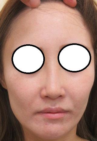 ほうれい線・頬のヒアルロン酸注入・鼻筋Gメッシュ。