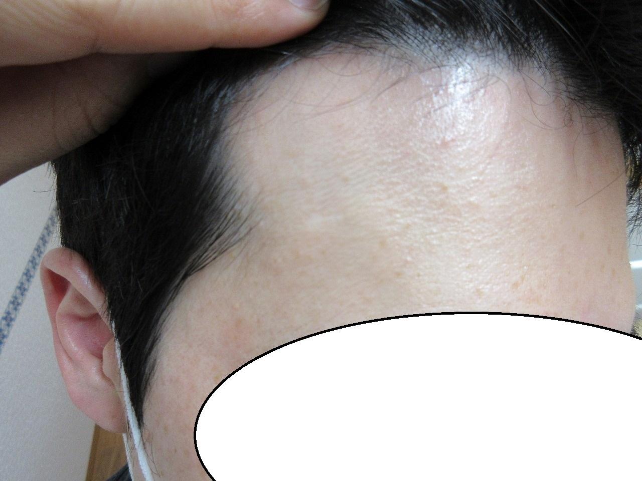 額の大きなほくろ、切除後1.5年目の経過。かなり傷はきれいです。