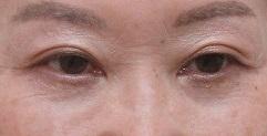 目の下のクマの手術・眉下切開法。2年9ヶ月目の経過