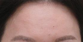 額のしわの治療。ボトックス+幹細胞上清液注入療法。