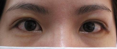 左目のみの埋没法。2週目の経過(右も2年前にやってそれの経過もあります)