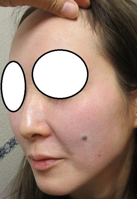 ゼオスキン+レーザー治療、1か月目の経過。