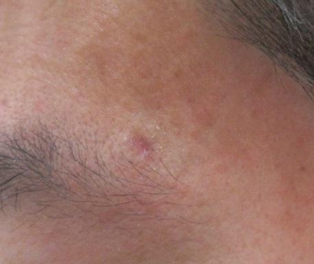 顔と首のホクロ。レーザー+切除の組み合わせ。3週目の経過。