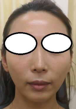 2年間で3~4回の糸治療やメソセラピー、目の下の美容針アイリフトなどやらせていただきました。いい感じです。