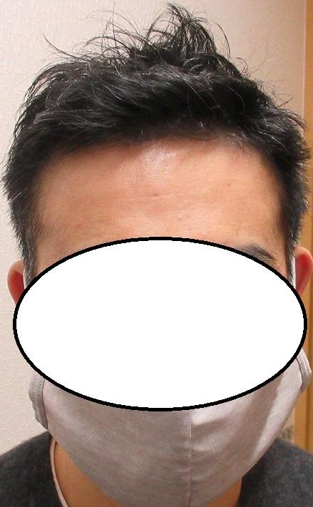 豊洲で薄毛治療。2年9か月目の経過。