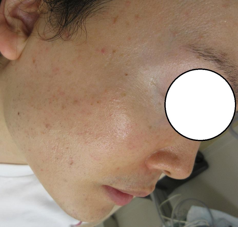 顔の多発するホクロのレーザー治療。3回施行。最後の処置から5ヶ月目。