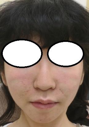 ウルトラセルQプラスや糸リフトを駆使して卵型のお顔に。今回はコグ付き美容針リフトを中顔面にやらせていただきました。