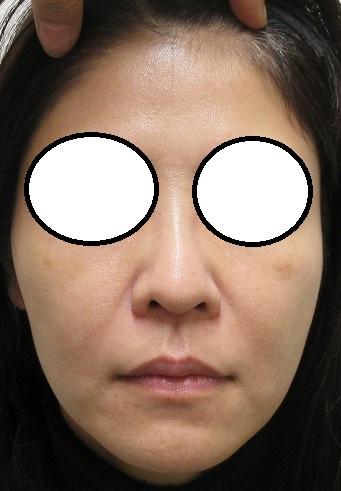 顔面の定期的なたるみ治療。4年目の経過。