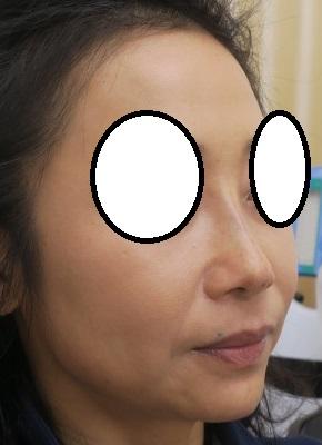 Gメッシュで鼻筋をシュッとさせました。直後も腫れはほとんどないです。