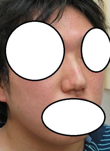 糸による鼻筋形成。Gメッシュ3本。直後の状態。鼻筋が強調されました。