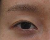 目の上のくぼみに対して脂肪幹細胞上清液注入療法を行っています。1年間で2回の処置の経過。