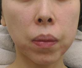 ウルトラセルQプラス+マリオネットラインへのヒアルロン酸。口元の溝が薄くなりました。