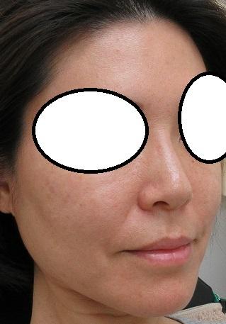 鼻筋形成の糸、オメガVL、2か月目の経過。