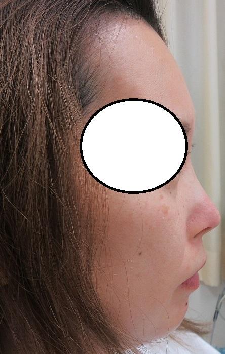 糸による鼻の形成術。直後の状態。