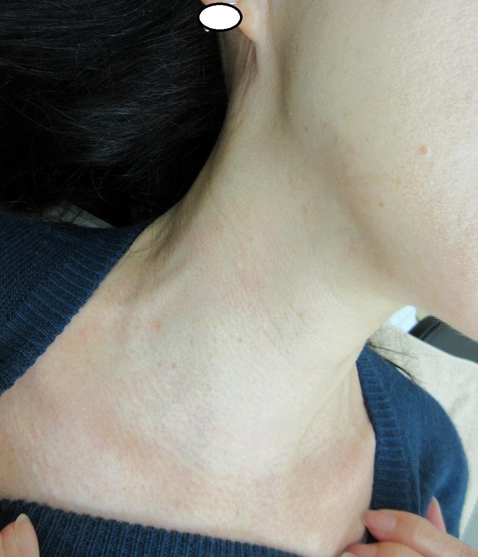首のイボイボのレーザー治療、2か月目の経過。きれいになりました。