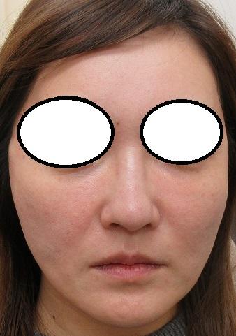 目の下へのベビーコラーゲン注入後2週目の経過+セルフロックリフトプラス4本ずつ、直後の状態。