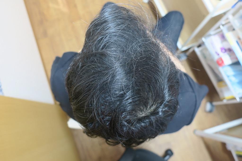 8月23日~26日限定。男女兼用の薄毛治療のメソセラピーの日にち限定モニター募集